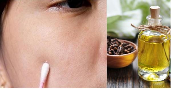 Çay Ağacı Yağı Ne İşe Yarar?